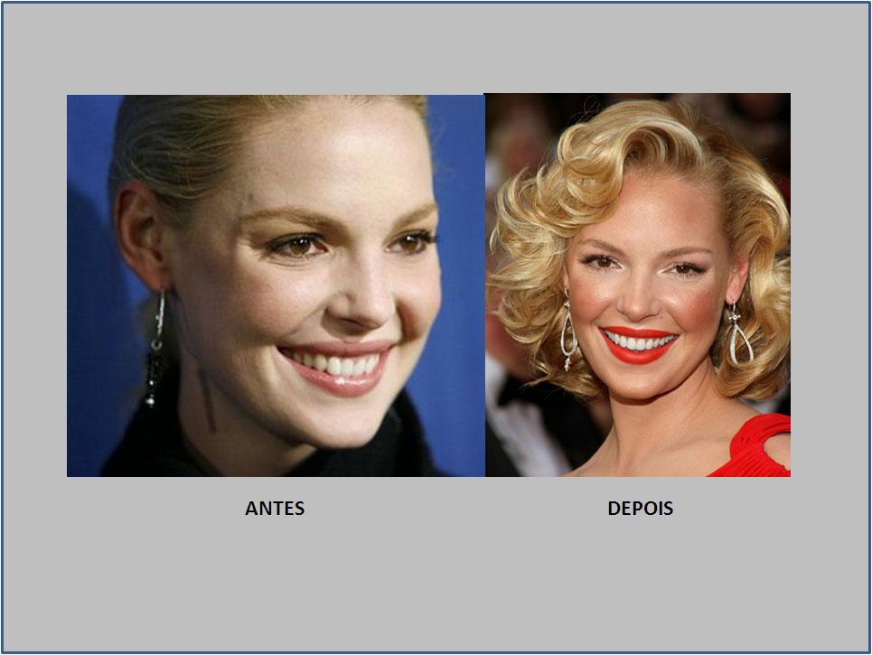katherine heigl sorriso antes e depois
