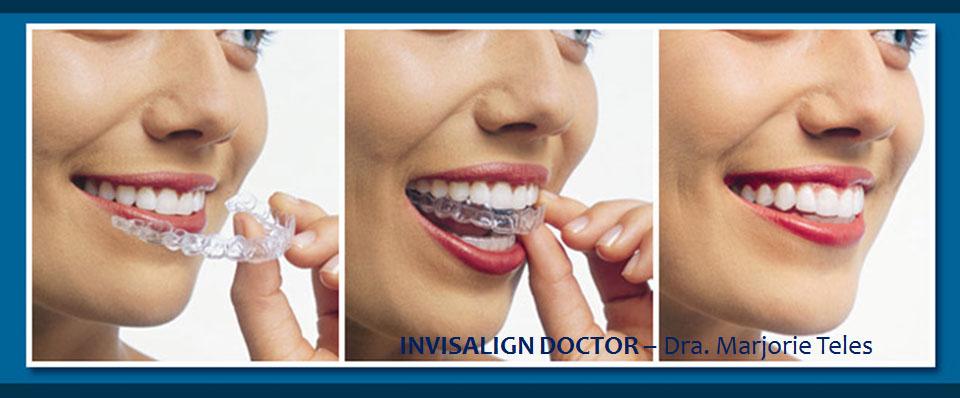 invisalign ortodontista credenciado