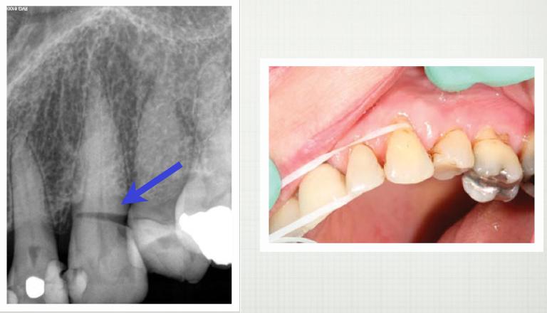 00d27d7f4 Veja o que um fio dental usado de maneira incorreta pode fazer ...